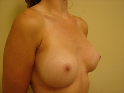 Breast Augmentation 01 Patient After