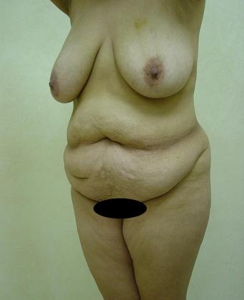 Abdominoplasty 01 Patient Before