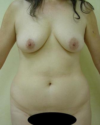 Abdominoplasty 02 Patient Before