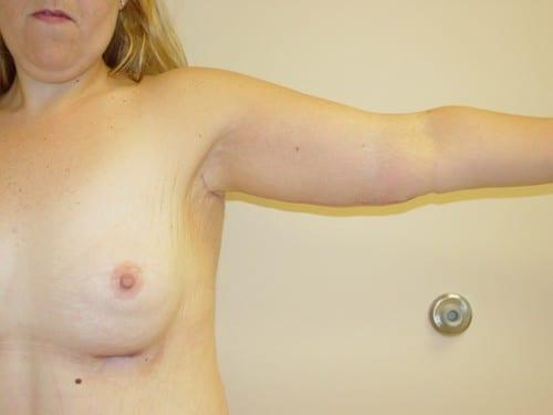 Arm Lift 01 Patient After