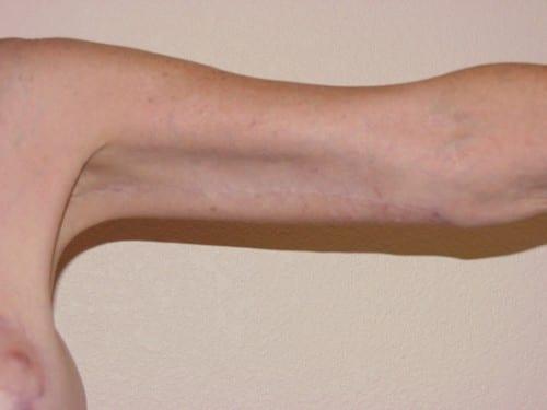 Arm Lift 02 Patient After