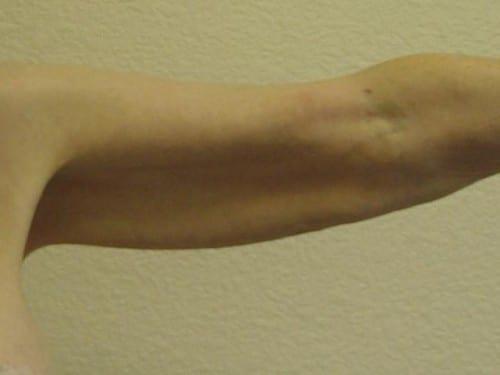 Arm Lift 02 Patient Before