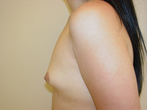 Breast Augmentation 11 Patient Before