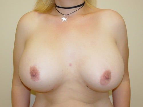 Breast Augmentation 12 Patient After