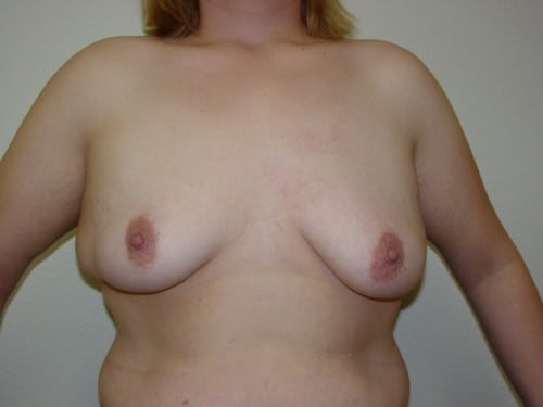 Breast Augmentation 12 Patient Before