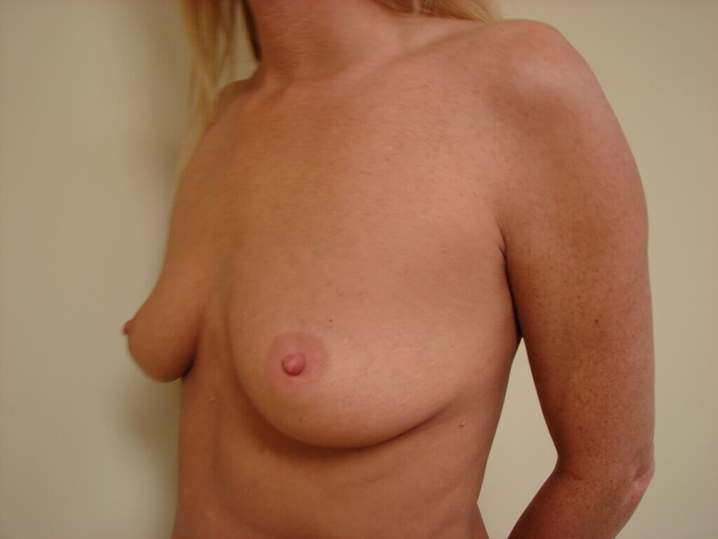 Breast Augmentation in San Francisco Patient Before 3