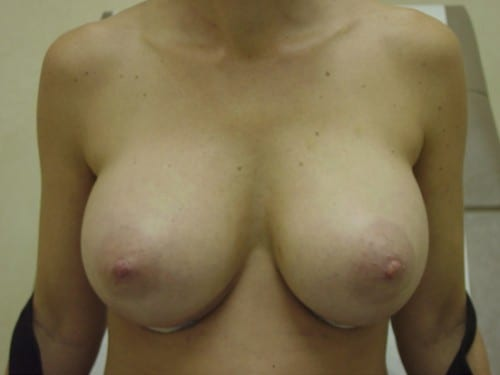 Breast Augmentation 02 Patient After