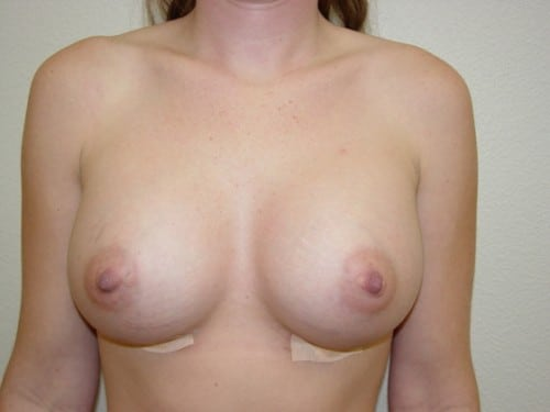 Breast Augmentation 05 Patient After