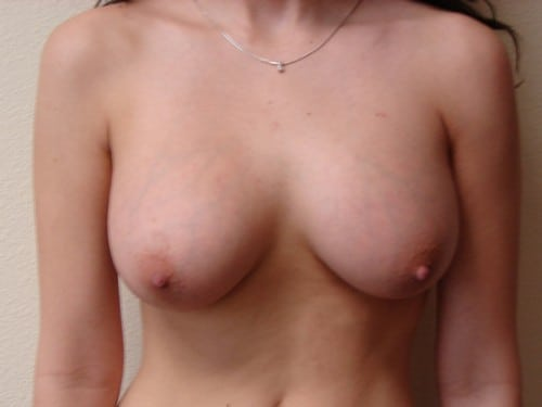 Breast Augmentation 08 Patient After
