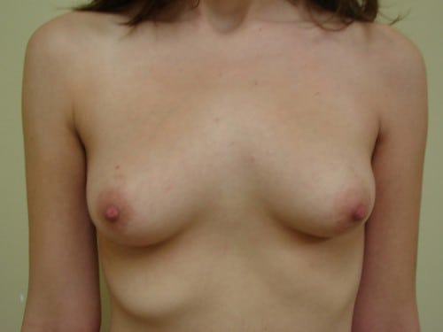Breast Augmentation 08 Patient Before