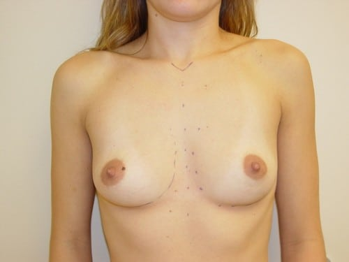 Breast Augmentation 09 Patient Before