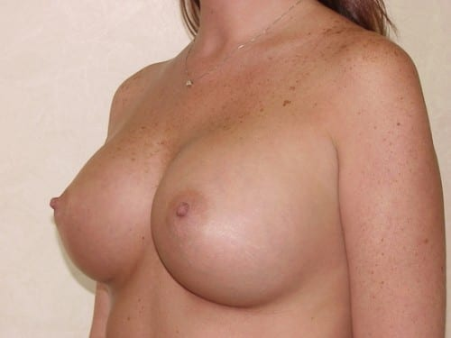 Breast Augmentation 03 Patient After