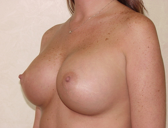 Breast Augmentation in San Francisco Patient After 2