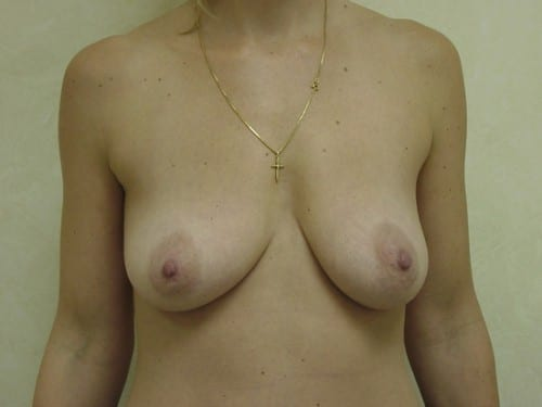 Breast Augmentation 02 Patient Before