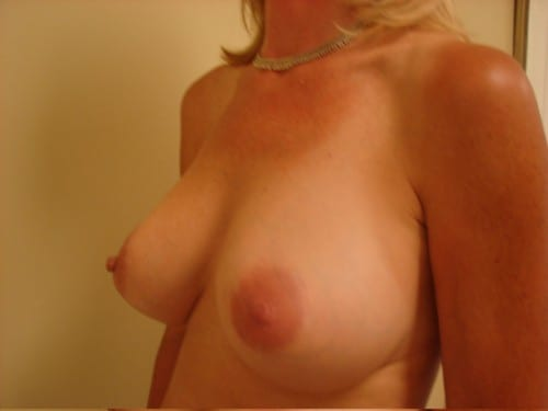 Breast Augmentation 04 Patient After