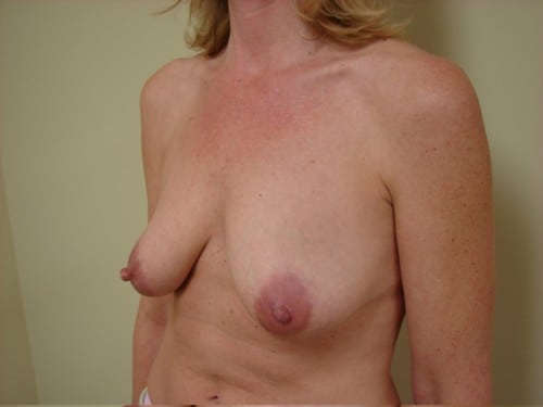 Breast Augmentation 04 Patient Before