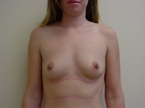 Breast Augmentation 05 Patient Before