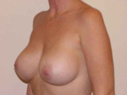 Breast Augmentation 06 Patient After