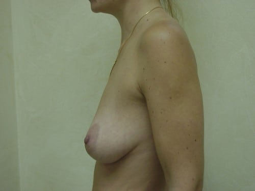 Breast Augmentation 06 Patient Before