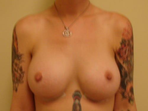 Breast Augmentation 07 Patient After