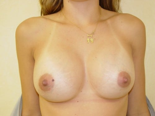 Breast Augmentation 09 Patient After