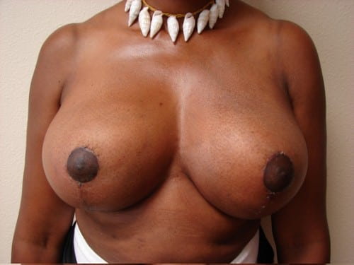 Breast Reduction 02 Patient After