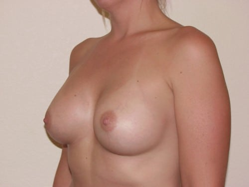 Breast Implants 01 Patient After