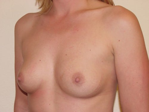 Breast Implants 01 Patient Before