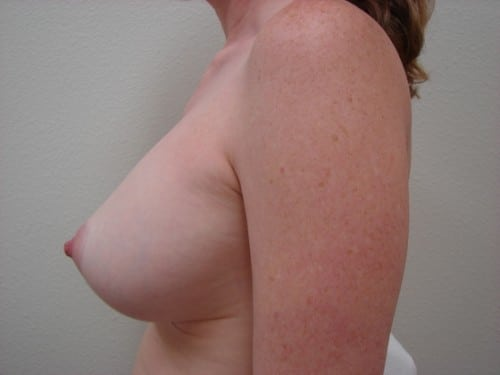 Breast Implants 10 Patient After