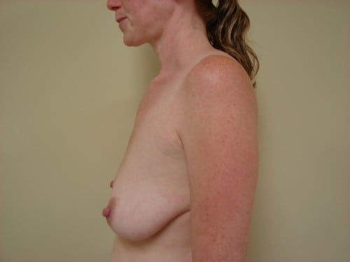 Breast Implants 10 Patient Before