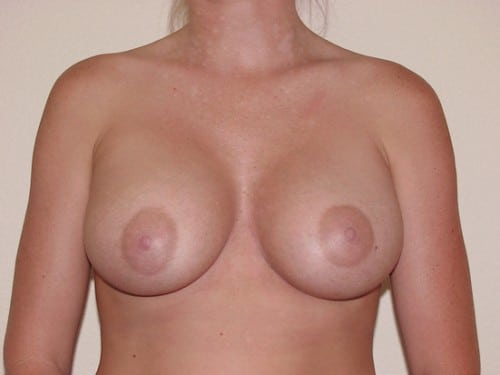 Breast Implants 11 Patient After
