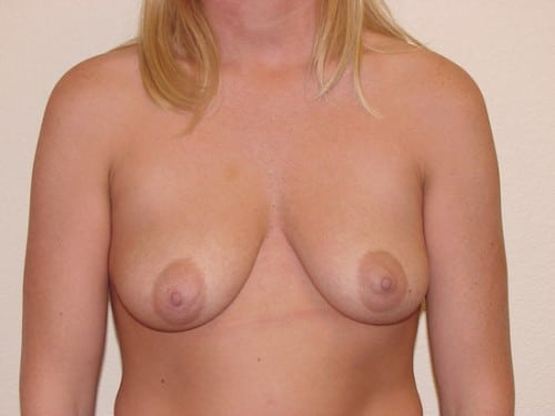Breast Implants 11 Patient Before