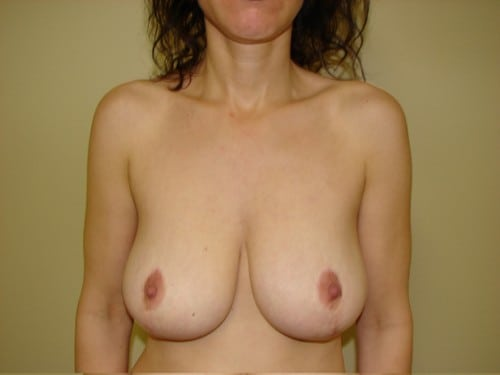 Breast Implants 12 Patient Before