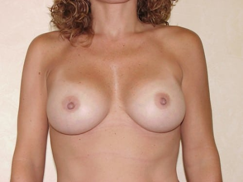 Breast Implants 02 Patient After