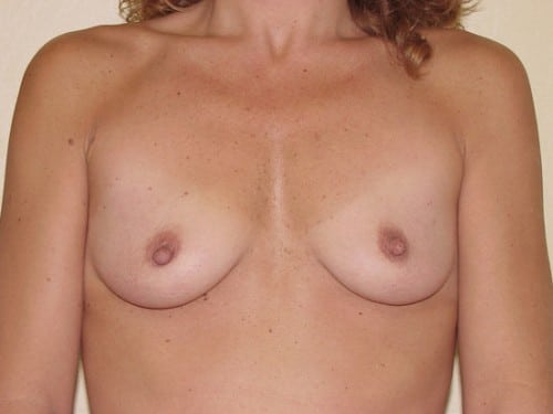 Breast Implants 02 Patient Before