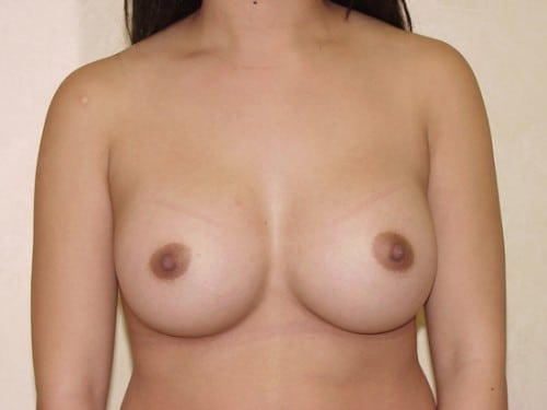 Breast Implants 03 Patient After