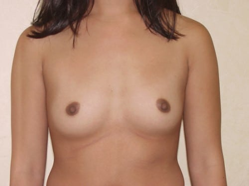 Breast Implants 03 Patient Before