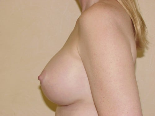 Breast Implants 04 Patient After