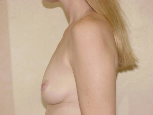 Breast Implants 04 Patient Before