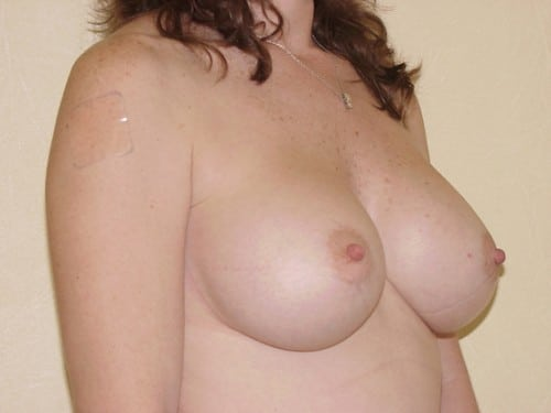 Breast Implants 06 Patient After