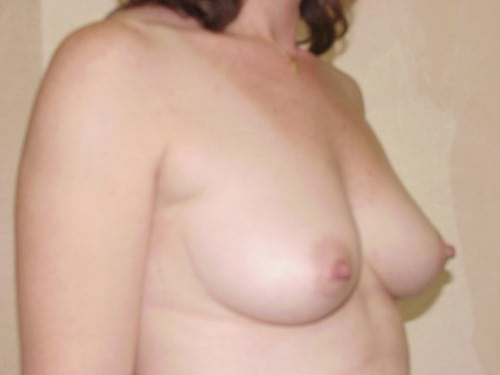 Breast Implants 06 Patient Before