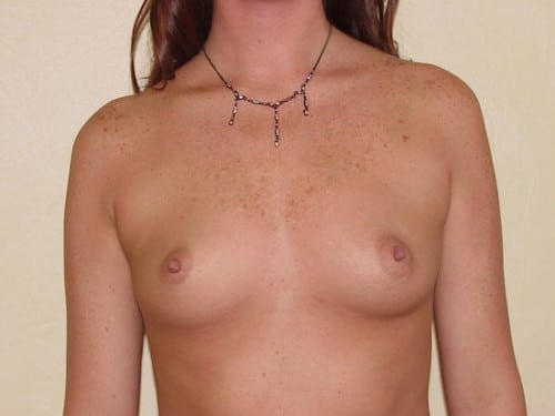 Breast Implants 07 Patient Before