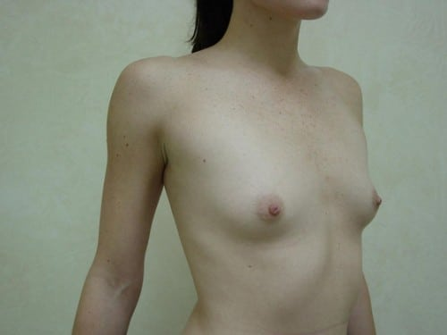 Breast Implants 08 Patient Before