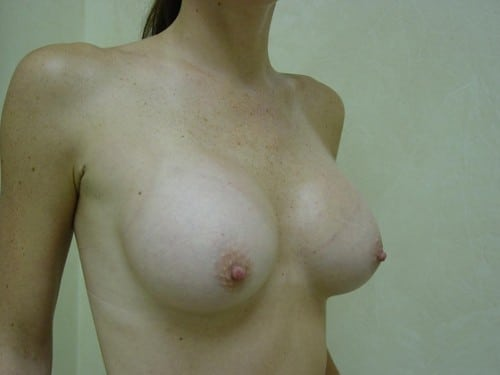 Breast Implants 08 Patient After