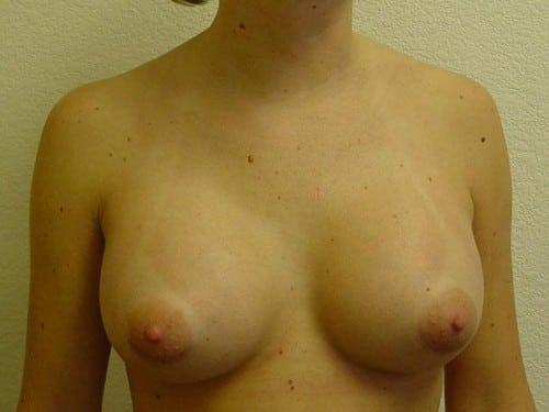 Breast Implants 09 Patient After