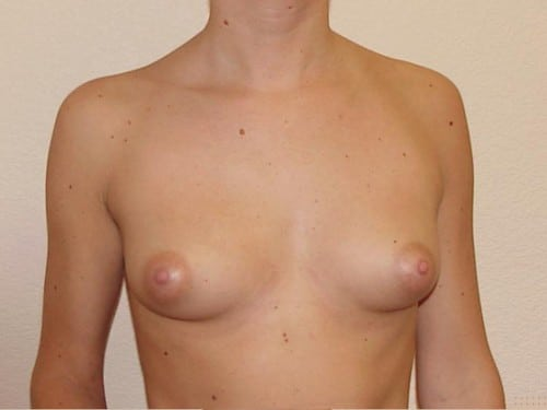 Breast Implants 09 Patient Before