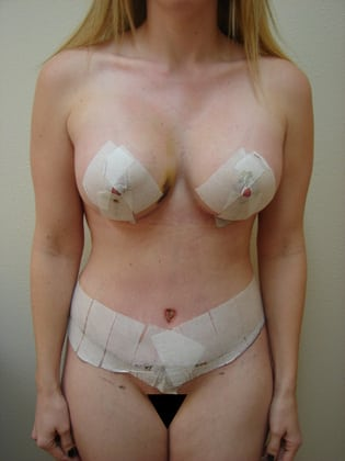 Breast Lift 10 Patient After