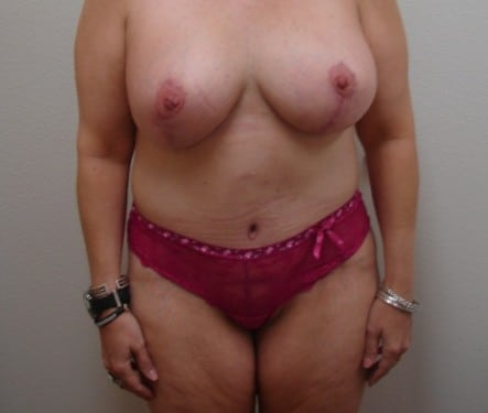Breast Lift 11 Patient After