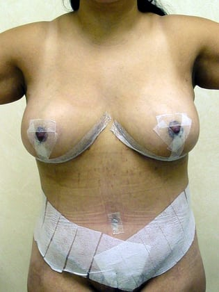 Breast Lift 12 Patient After