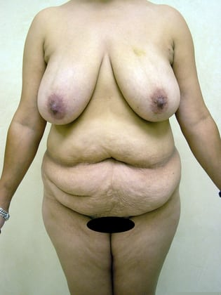 Breast Lift 12 Patient Before